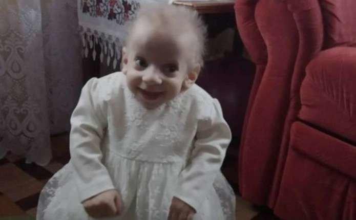 8-річна українка померла від старості: фото, відео дивовижної дівчинки