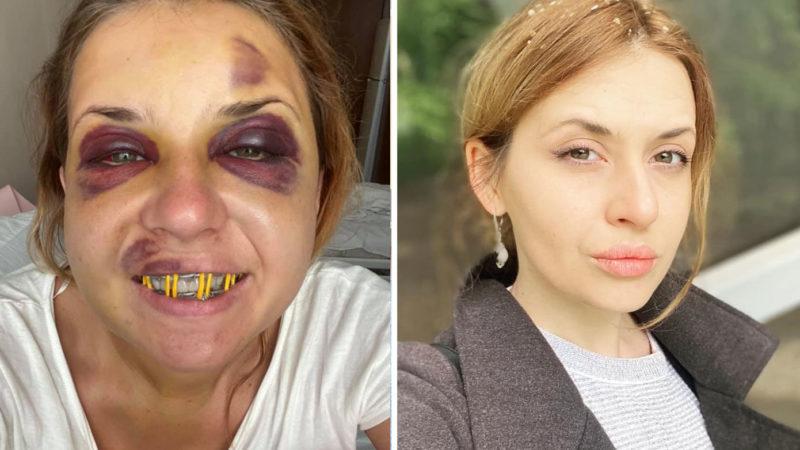 Анастасия Лугова: «Этой ночь не спала почти. Боюсь каждого шороха. Услышала среди ночи мужской голос за стенкой»