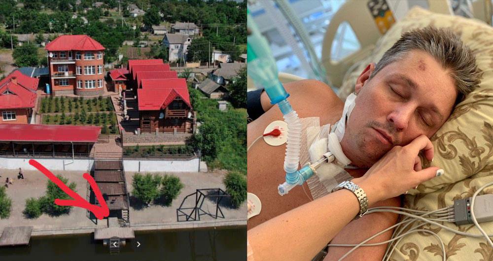 Скончался мужчина, сломавший позвоночник в отеле под Киевом. Без отца остались 2 детей