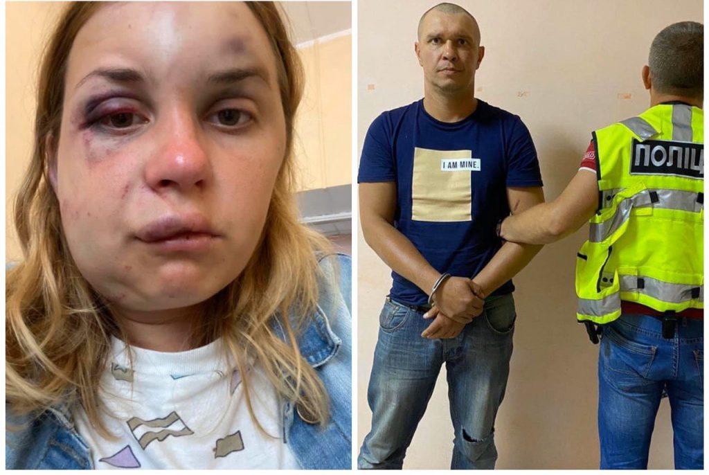 Жертва нападу в поїзді Анастасія Лугова про свій стан: Прокинулася о 6 ранку від болю, не можу видати ні звуку, паніка і жалість до себе