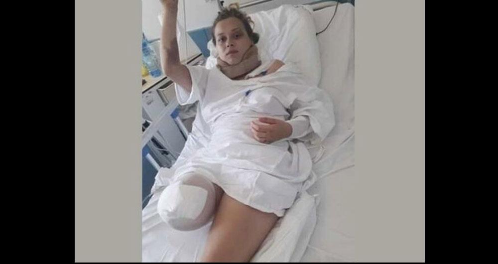 «Ногу відрізали по коліно»: молода тернополянка потрапила в біду на заробітках у Польщі Знай більше!