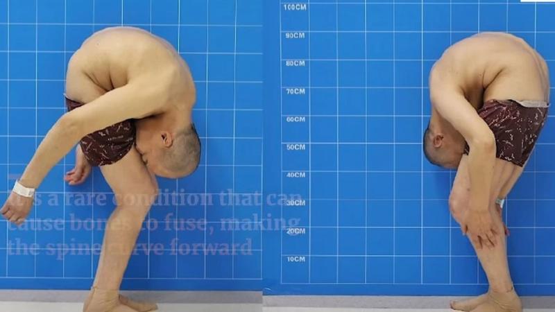 Для спасения жизни хирурги сломали мужчине позвоночник в двух местах (ФОТО)