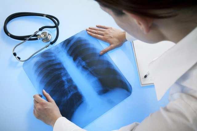 Врачи назвали признаки «тихой» пневмонии, которые нельзя пропустить