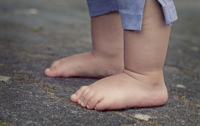 Ноги відмовили через застуду: в Одесі лікар ледве не погубила маленьку дитину