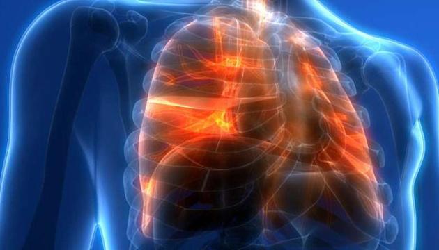Медики показали легкие 52-летнего заядлого курильщика (ВИДЕО)