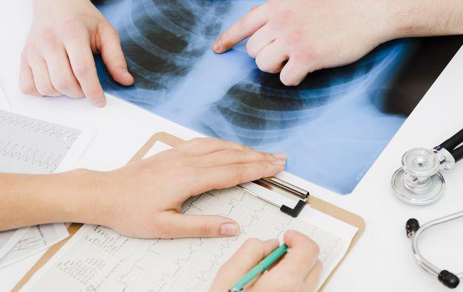 Обследования для больных с подозрением на COVID-19 станут бесплатными: что попало в список