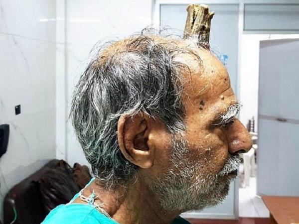 Не болів, але невпинно ріс: Чоловікові в ході операції видалили 10-сантиметровий ріг (фото)