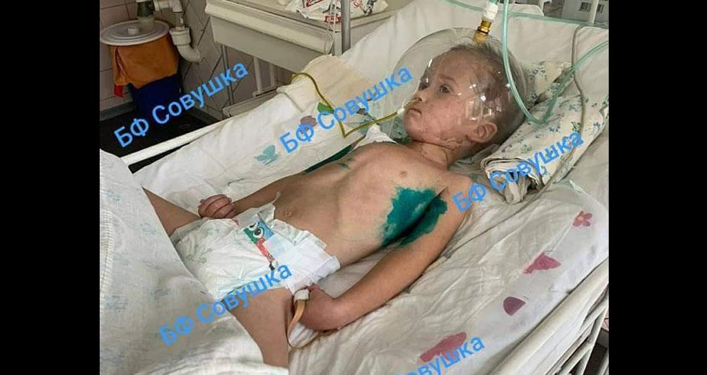 «20 минут не билось сердце, а сейчас отек мозга» Малыша с коронавирусом спасают под Днепром