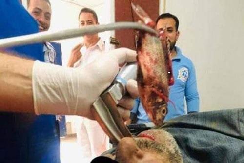 Рыбак засунул себе улов в рот и едва не погиб