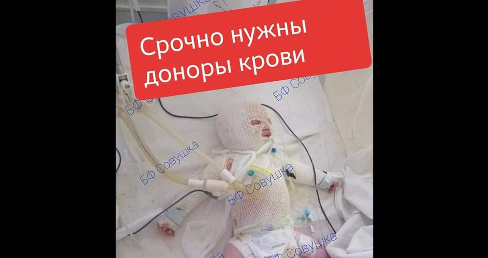 Днепр, нужны доноры! У малыша 30% ожога тела , ему всего 2,5 месяца