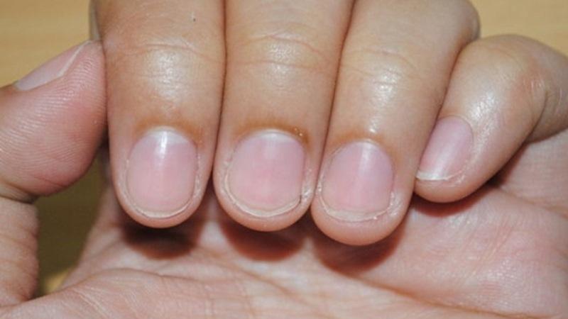 О чем говорят отсутствие лунок на ногтях