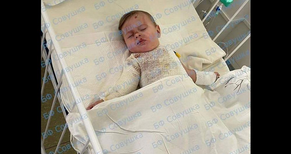 Днепр! Это маленький Святослав, ему 11 месяцев. Несколько дней на него упала миска с кипятком