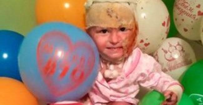 Обірвалося життя маленького Артемка, який обгорів у зачиненій машині: «Артемко мучився 5 місяців»