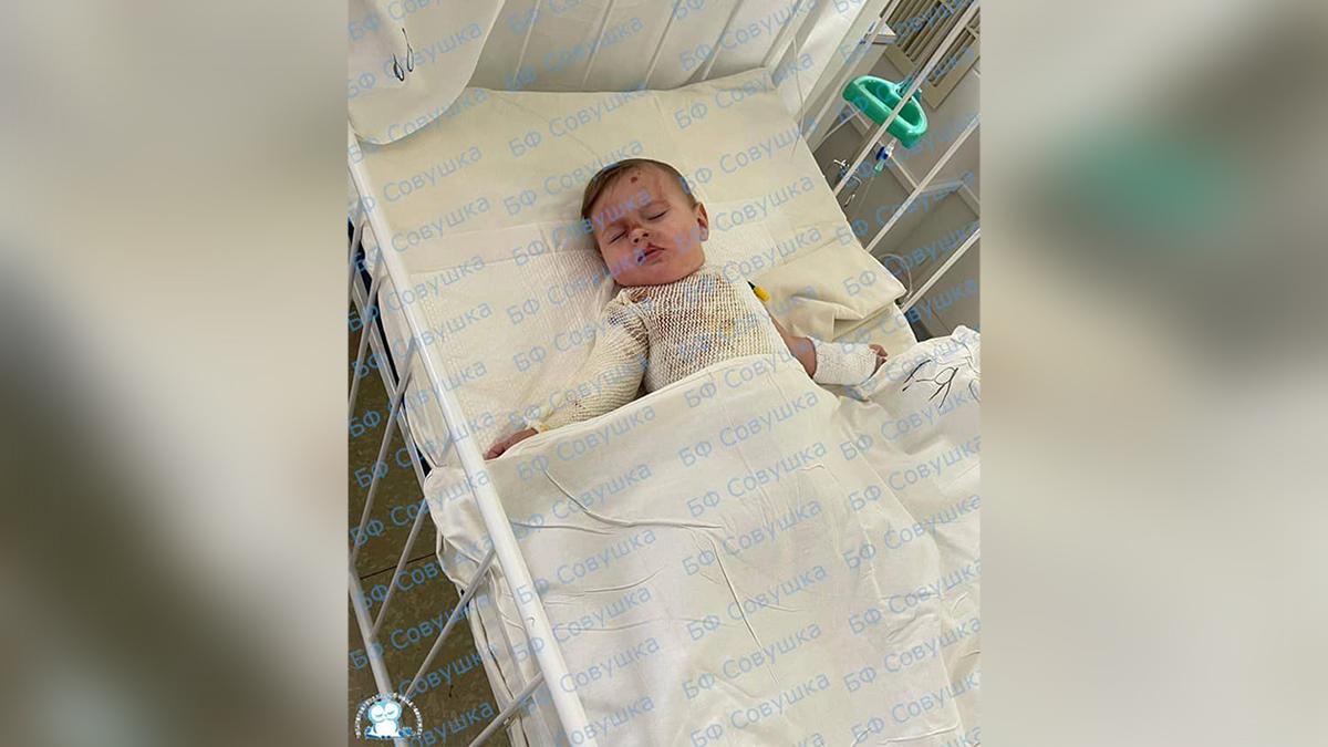 В Днепре на 11-месячного ребенка упала миска с кипятком: нужна помощь