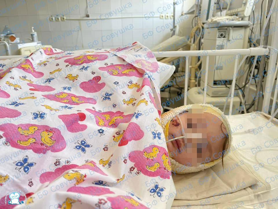 Состояние девочки, которая прыгнула в ванну с кипятком и получила 60% ожогов тела