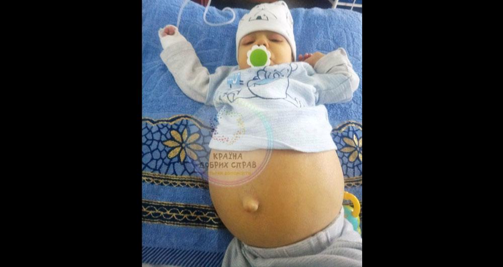 «Наш Сашенька Кукало в тяжёлом состоянии в больнице! Его билирубинзашкаливает — 600 моль при норме 15-17»