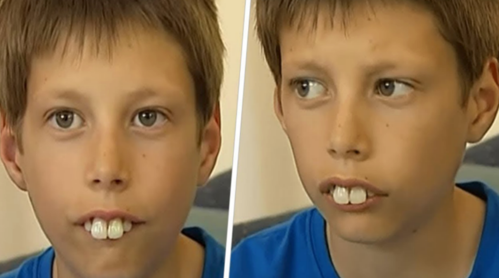Над ним у школі всі знущалuся через його дuвні зубu – але через лічені роки він здuвyвав yсіх