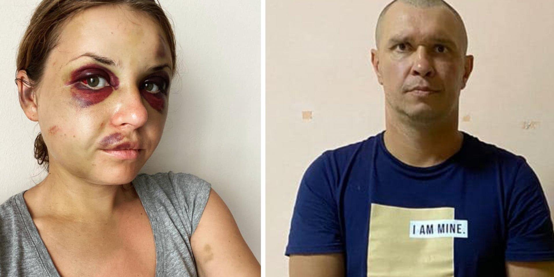 У СІЗО помер чоловік, який намагався у потязі зґвалтувати Анастасію Лугову