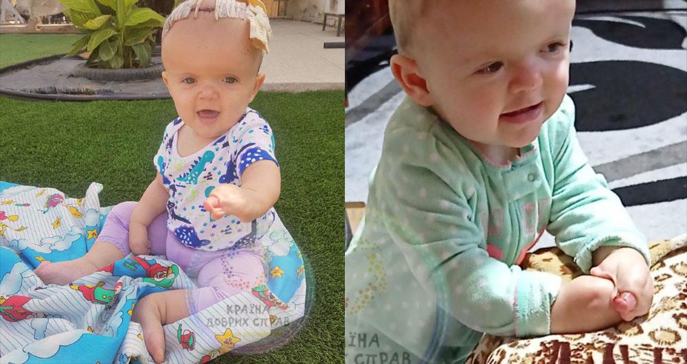 Ксюша Ковтун, 1 годик и 7 месяцев. Синдром Апера лишил ее здоровых ручек и ножек