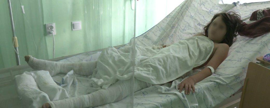 Девочку с 35% ожогов тела перевели из Днепрорудненской больницы в Запорожье