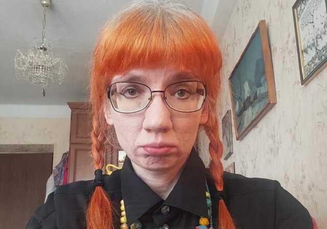 Вынуждена выживать: уволенная Бильченко пожаловалась, что Россия ее «кинула»