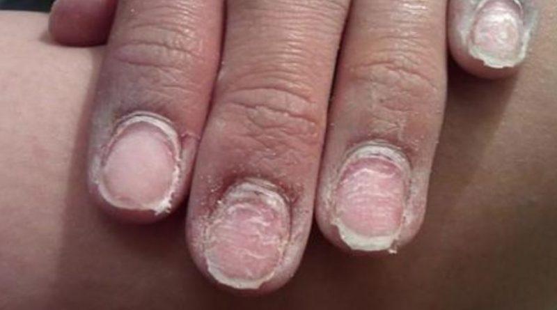 Чем грозит гель-лак и как оздоровить ногти после его долгого использования