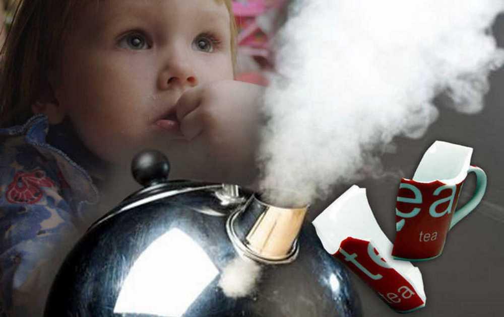 В Запорожской области на ребенка упал чайник с кипятком. Мальчик в реанимации