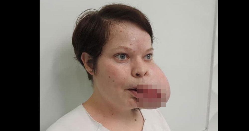 Украинские хирурги готовы сделать операцию девушке за 30 000€